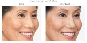 Botox Before and After 1 | Botox in Burbank